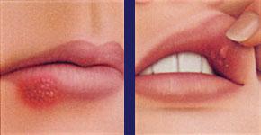 Llagas en los labios