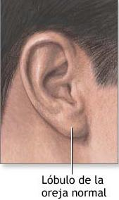 Lóbulo de una oreja